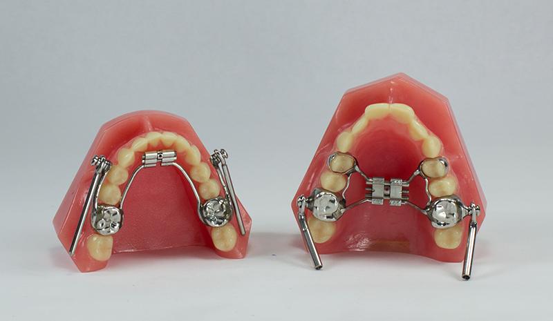 Herbst Johns Dental