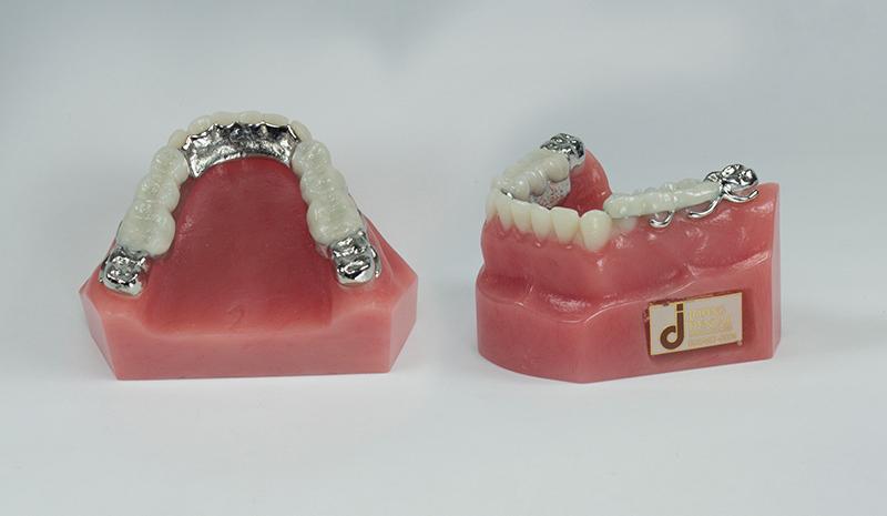Bite Restorer - Johns Dental